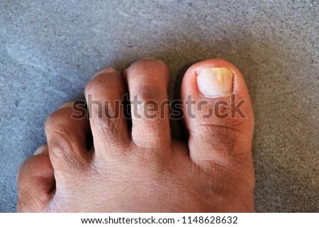 Onychomycosis Foot Nail Fungus White Stock Photo (Edit Now ...