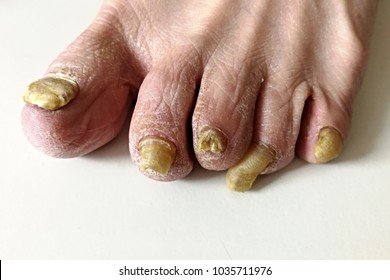 Onychomycosis fungal infection of the nail. It is the most common disease of the nails. It is an actual skin infection with the Trichophyton rubrum