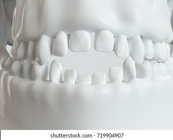 Open bite by pacifiers - 3D rendering