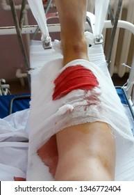 Open leg fracture, close-up.