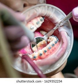 Open mouth in dentistry. Dental braces and cheek refractor on teeth. Cleaning plaqe procedure