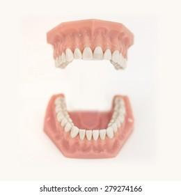 open mouth denture