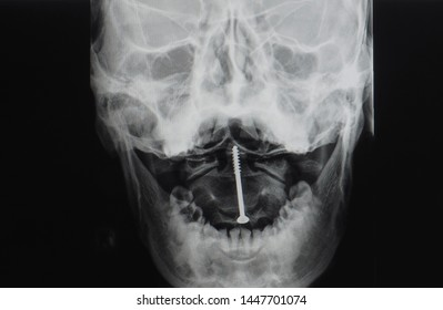 open mouth view x-ray of cervical spine showing closed reduction and internal fixation with screw for odontoid or dens fracture. The patient has neck pain but no spinal cord injury.