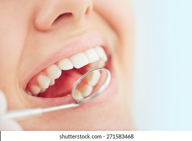 Open mouth of woman during checking teeth
