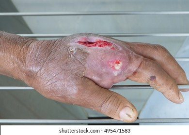 Wound Infection Images, Stock Photos & Vectors | Shutterstock