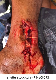 Open wound and tendon injury
