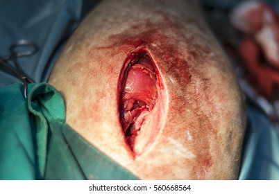 Open wound for treatment canine bone fracture