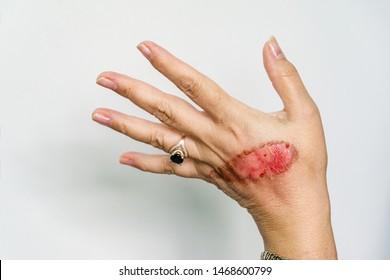Eine offene Wunde der Hand der Frau mit thermischem Brennen einer zweiten Hautverletzung nach dem Kochen von Wasser auf weißem Hintergrund. Hausunfall, kochendes schlampiges Verhalten. An den Fingern Ring mit blauem Stein