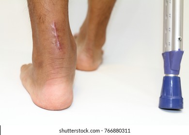 operation scar of Achilles tendon rupture and crutchs