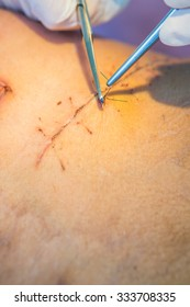 operation suture with a blue fiber