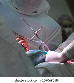 Operation. Traumatology. Surgeon. Work on the knee joint. Complex surgery, in the hands of a scalpel. Close-up, blood, bandages