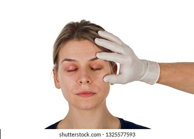 Ophthalmic infection. Hordeolum on upper eyelid, shown by doctor wearing aseptic white gloves. Staphylococcus