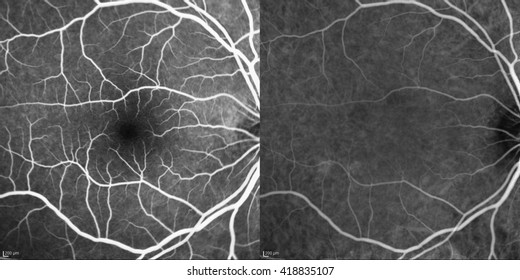Optical Coherence Tomography (OCT) image of eye in the patient