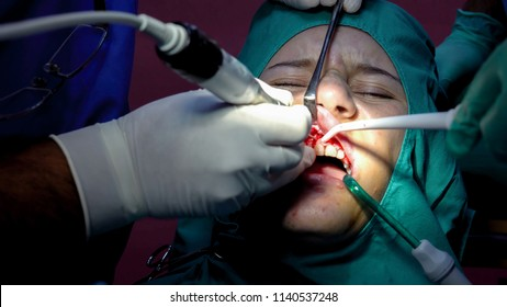 Oral dental surgery operation, tooth gum apicoectomy cyst removal