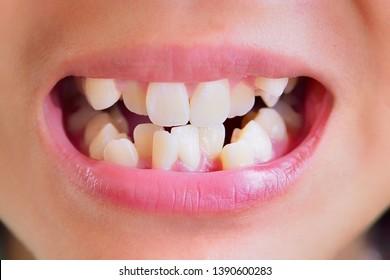 Oral health, irregular shaped teeth make it look unattractive.