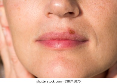 Oral herpes on upper lip of a woman
