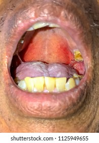 Oral Mucositis ,it's the painful inflammation and ulceration of the mucous from adverse effect of chemotherapy and radiotherapy treatment for cancer.