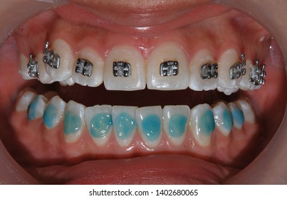 orthodontic treatment theet mouth odontology
