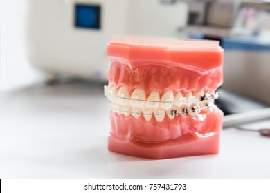 Orthodontics dental braces on teeth model to align and strengthen teeth