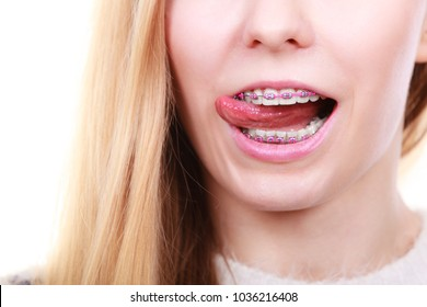 Orthodontist dentistry treatment concept. Happy smiling woman licking her dental braces on teeth