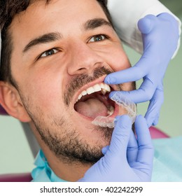 Orthodontist placing invisible braces to patient's mouth