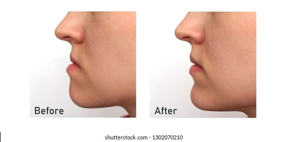 Orthognathic Surgery. Jaw Surgery. Malocclusion