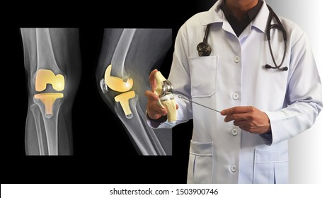 Orthopedic doctor giving information on treatment osteoarthritis disease (OA knee) by surgery with Total Knee Replacement(TKR) prosthesis. Film X ray show joint implant. Medical technology concept.