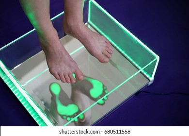 Orthopedics, foot podoscope test. Female feet during a podoscopic examination in an orthopedic surgery