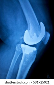 Orthopedics knee joint meniscus, ligament, tendon and cartilage injury titanium modern metal implant x-ray scan.