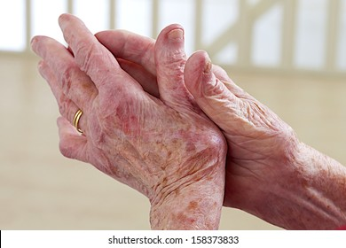 osteoarthritis of the hand with deformity
