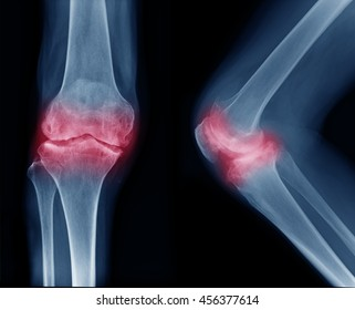 Osteoarthritis Knee ( OA Knee ). Film x-ray both knee ( front view ) show narrow joint space ( joint cartilage loss ) , osteophyte , subchondral sclerosis