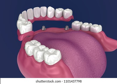 Overdenture to be seated on 4 implants - ball attachments. 3D illustration