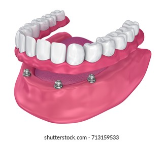 Overdenture to be seated on implants - ball attachments. 3D illustration