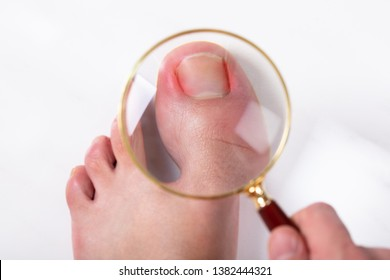 An Overhead View Of Person's Hand Holding Magnifying Glass Over Sore Toe Nail On Floor