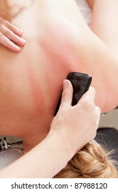 Overhead view of woman receiving gua sha acupuncture treatment on back
