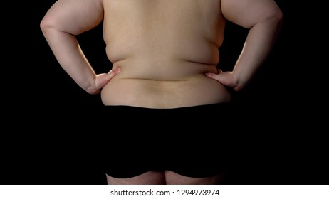 Overweight male, lack of diet and exercising, sedentary lifestyle, cellulite