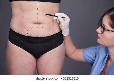 Overweight, obesity, fat Woman, fat belly, hips and excess weight. Surgeon, liposuction, body. cellulite, stretching. Fat woman.