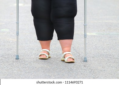 Overweight patient with crutches walking on footpath. Physiotherapy treatment and obesity problems.