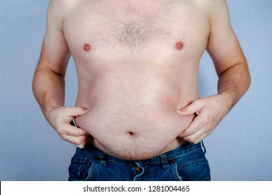 Overweight shirtless caucasian man holding his belly fat