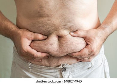 Overweight white male holding his belly fat with both hands. Obesity concept.