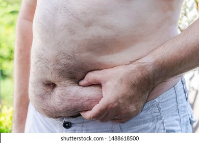 Overweight white male holding his belly fat with one hand. Obesity concept.