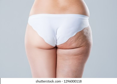 Overweight woman with fat cellulite legs and buttocks, before after concept, obesity female body on gray background, rear view