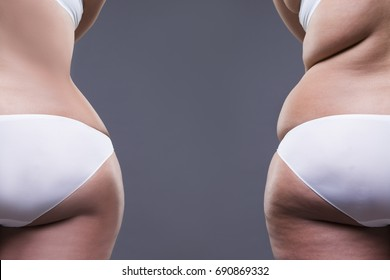 Overweight woman with fat legs and buttocks, before after concept, obesity female body on gray background, rear view