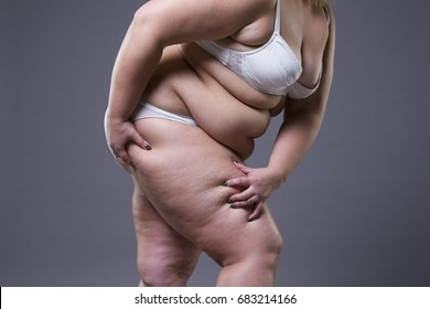 Overweight woman with fat legs, obesity female body on gray background
