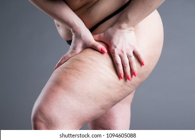 Overweight woman with fat thighs, obesity female legs on gray background