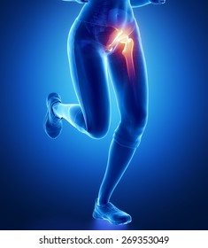 Pain in hip