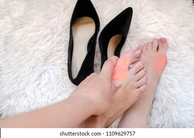 Pain in woman feet bunion.Girl bare feet and hand touching painful red pain spot.Health of bony bump and legs