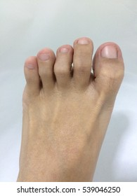 Painful gout inflammation on big toe joint on white background.