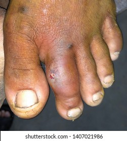 Painful impending large abscess with surrounding cellulitis or Staphylococcal /Streptococcal skin infection at index toe in left foot of Southeast Asian Burmese young male patient in clinic of Myanmar