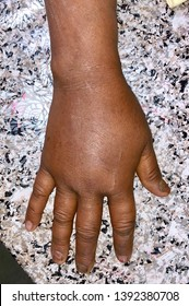 Painful and swollen right hand in asian Burmese adult female patient. caused by exercise, injury, trauma, tight bandaging, nerve entrapment or compartment syndrome